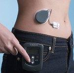 FDA diabetes artificial pancreas